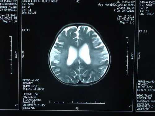 常用抗癫痫药物会产生哪些副作用
